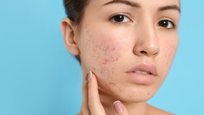 8 Top Tips For Acne Sufferers