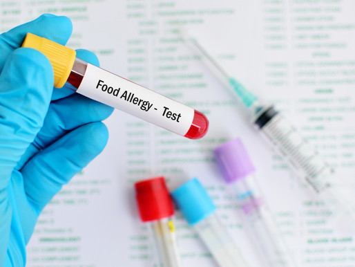 Food Allergy & Sensitivity Testing: What You Need Know