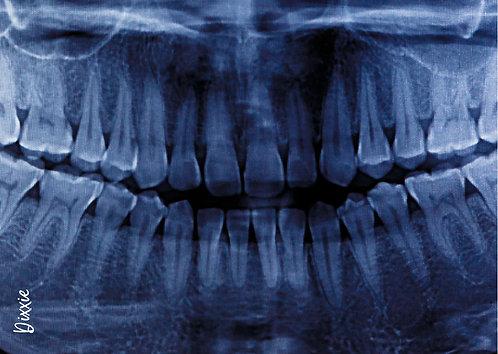 משטח עכבר רופא שיניים