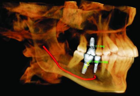 Precise implant restore-print.jpg
