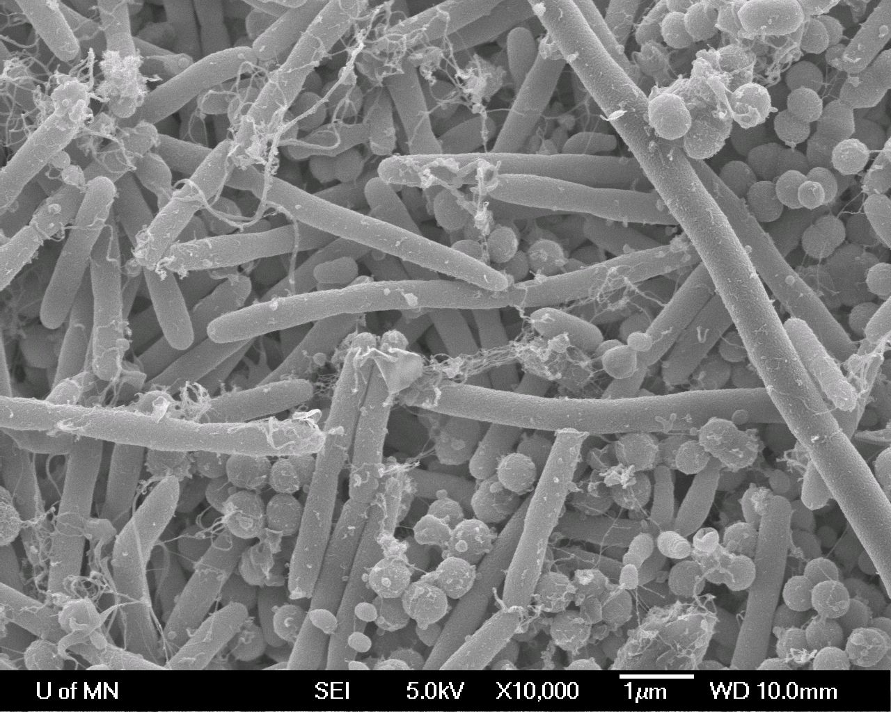 Biofilm on Hydroxyapatite