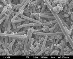 Biofilm on Hydroxyapatite