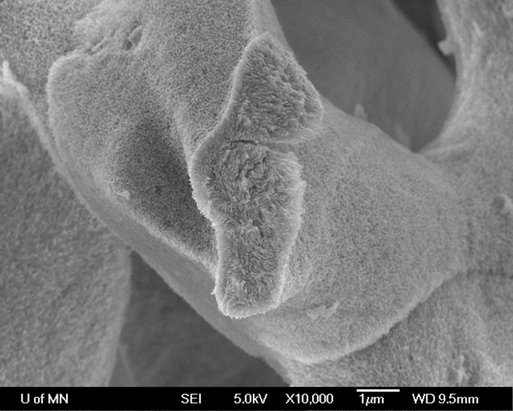 Mineralized Recombinamer Scaffold