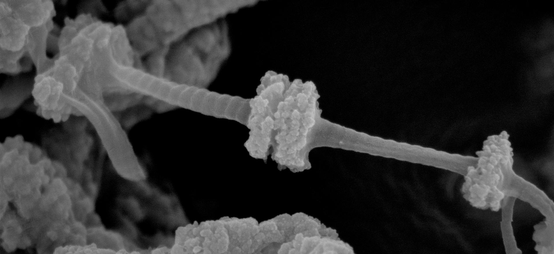 Calcium Carbonate Mineralized Collagen