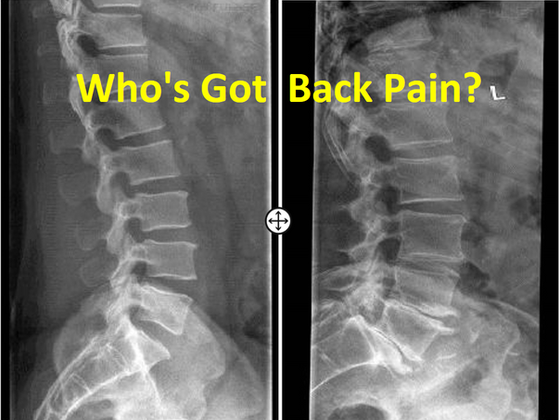 Why your chiropractor isn't as concerned about your arthritis as you are.