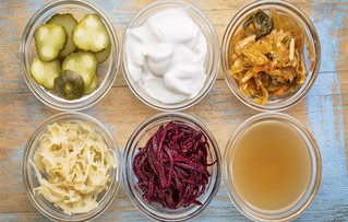 Probiotics 101: What are they and why you should take them