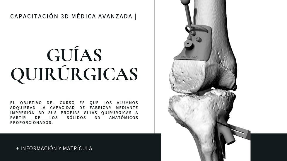 Guías Quirúrgicas.png