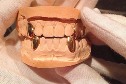Gold 4-Grillz