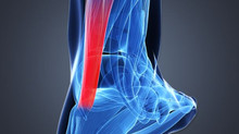 Pain in the Heel: Achilles Tendinopathies