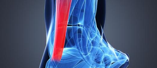 Pain in the Heel: Achilles Tendinopathies
