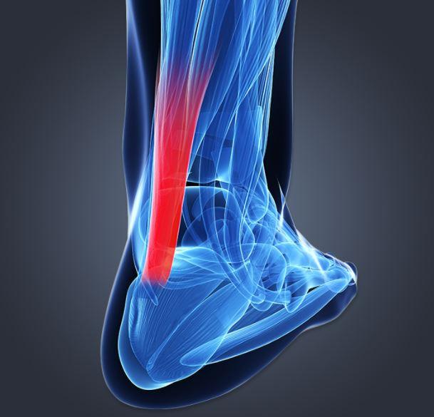 Achilles Tendinopathies