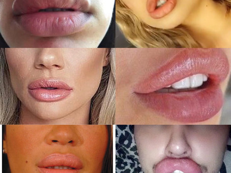 Could lip filler give you something worse than a trout pout?!