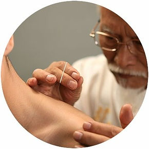 ham acupuncture massage_edited4.jpg