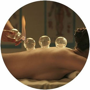 Richmond Cupping Therapy_edited5.jpg