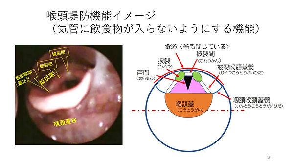 喉頭堤防機能.jpg