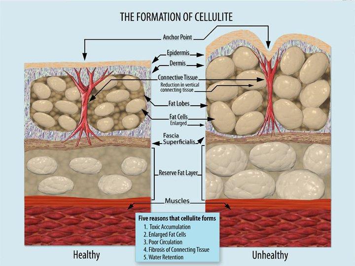 Best anti cellulite body scrub