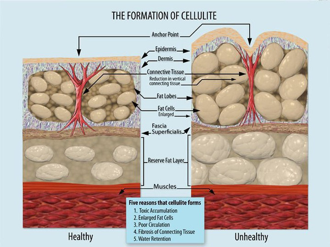 Cellulite? You need a massage!