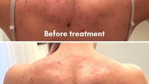 Acne isn't a skin problem
