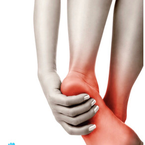 Free Plantar Fasciitis Recovery Guide:
