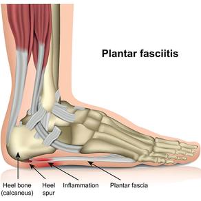 Plantar Fasciitis Intro