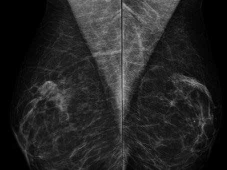Assimetria focal na mamografia