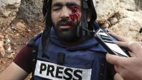 Zionists Shoot Journalist in the Eye