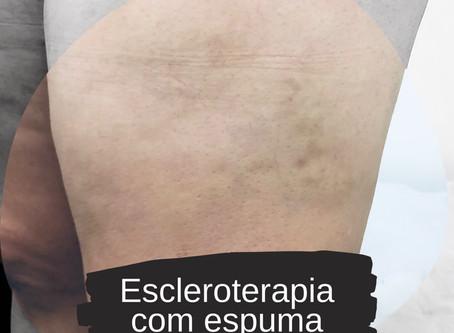 Complicações da escleroterapia com espuma