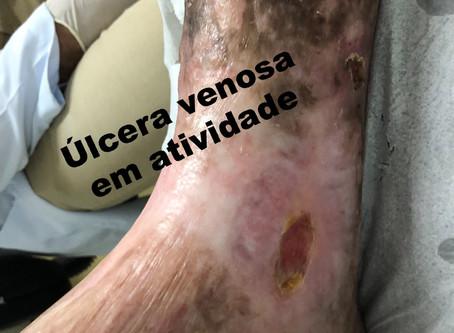 Quais doenças vasculares podem causar feridas na pernas?