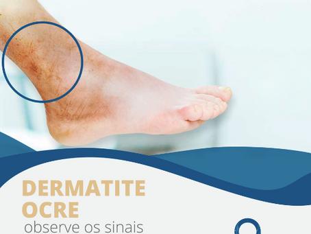 Dermatite ocre: observe os sinais do seu corpo.