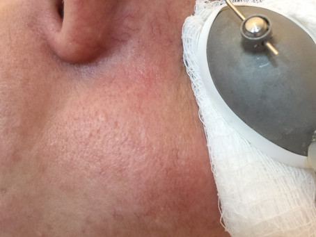 Laser para vasinhos do rosto