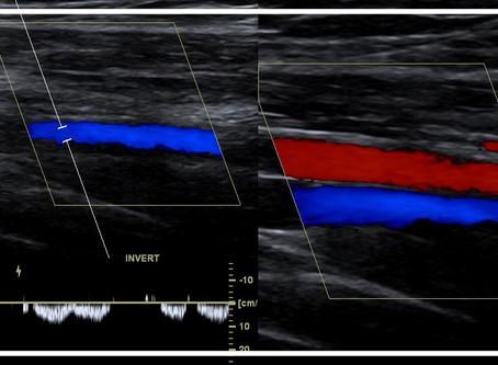 Ultrassonografia Doppler na Cliangi!