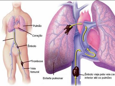 Perguntas frequentes: A escleroterapia com espuma pode levar a trombose?