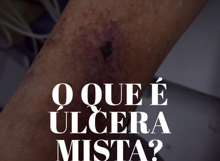 Você sabe o que é uma úlcera mista?
