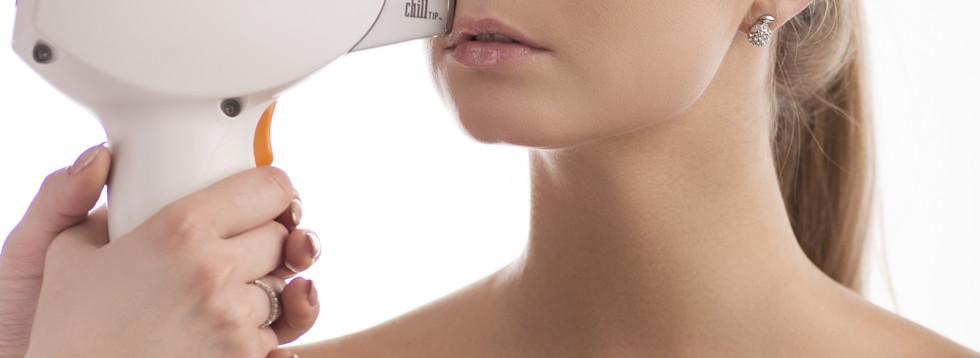 Depilacja laserwa wąsika