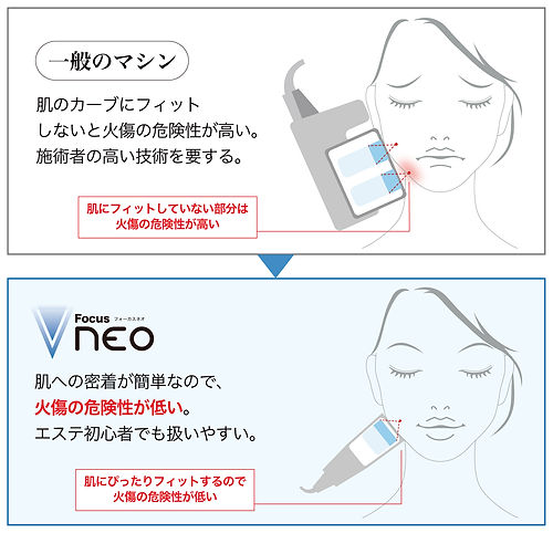 focus-neo理由2バナー.jpg