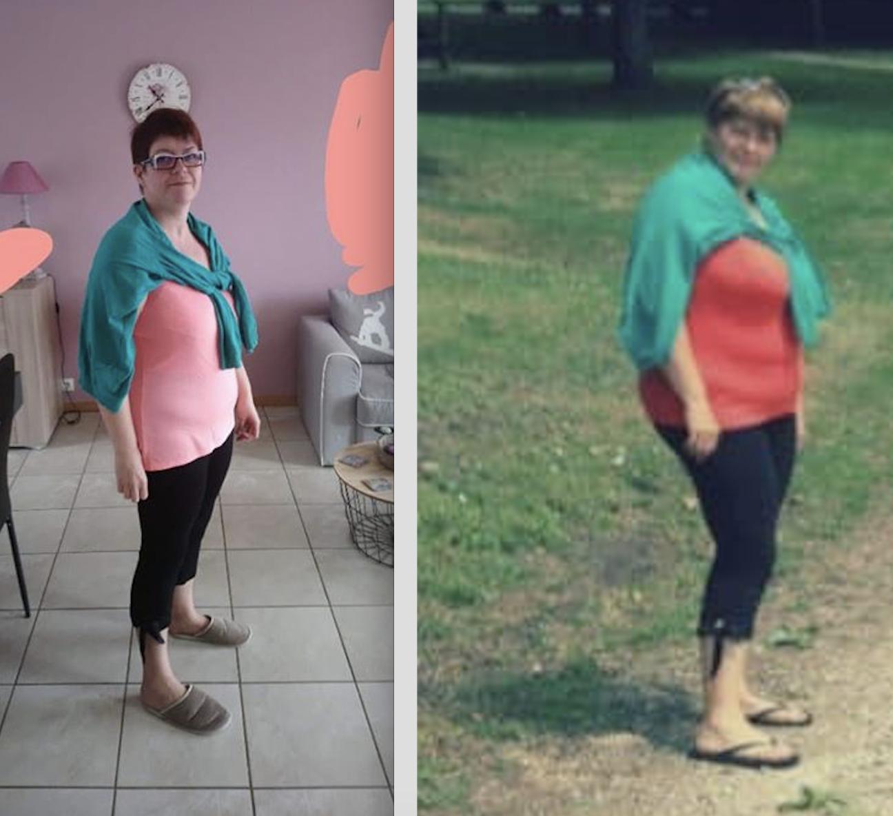 Avant après perte de poids