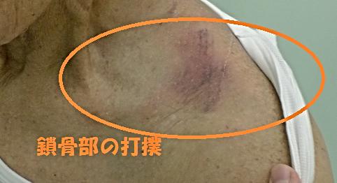 ひがしまつやm東松山市若松町接骨院での鎖骨部打撲の症例