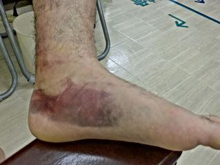 東松山市で足首の捻挫の皮下出血班