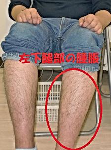 左下腿部の負傷による腫脹