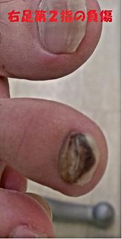 足趾の負傷