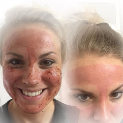 Couldn't resist a quick Cherry Peel! This is after just 4 minutes, my skin now feels amazing! 🍒#fac