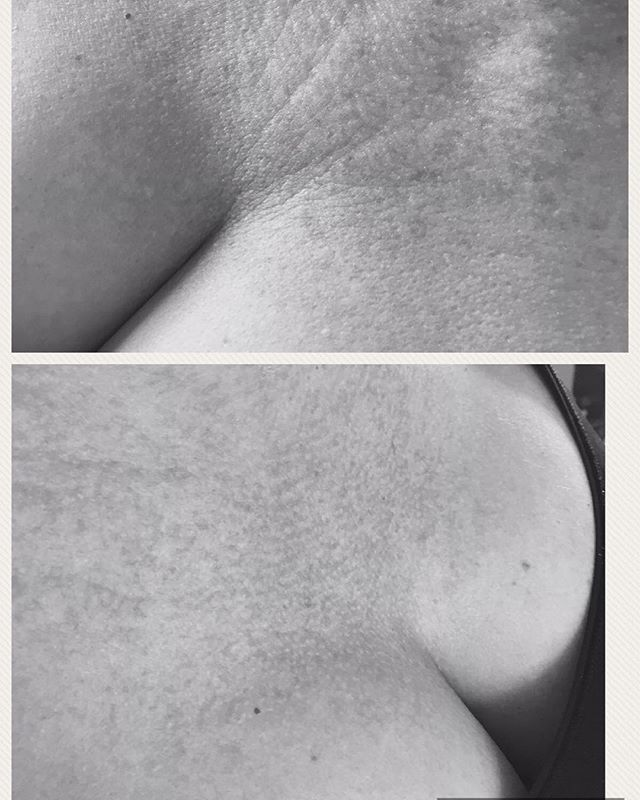 MESo ME on décolletage, one session only which takes a few minutes, you will see instant results tha