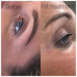 Amazing result today after just one Meso treatment! #meso #facial #antiwrinkle #antaging #acnetreatm