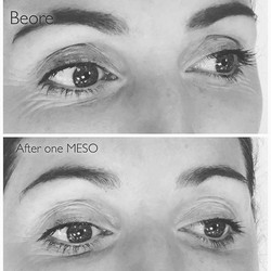 Before & immediately after just 1 MESO ME treatment, the fine lines around her eyes are visibly redu