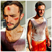 Casualty Makeup By Reena Parmar ProArtist