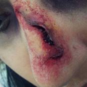 Casualty Nose Effect By Reena Parmar ProArtist