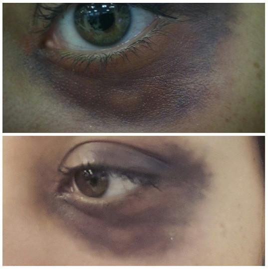Black Eye By Reena Parmar ProArtist