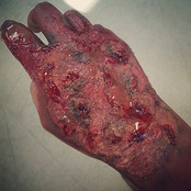 Burnt Hand By Reena Parmar ProArtist