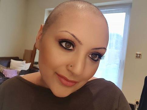 Bald & Beautiful - Cancer Survivor