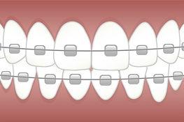 braces-3597591_960_720.jpg